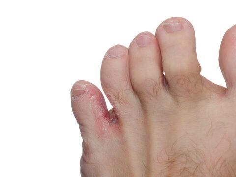 fekély a lábujjak között)
