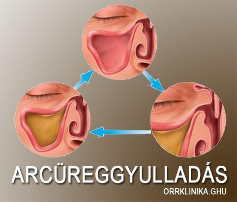 maxilláris rák tünetei)