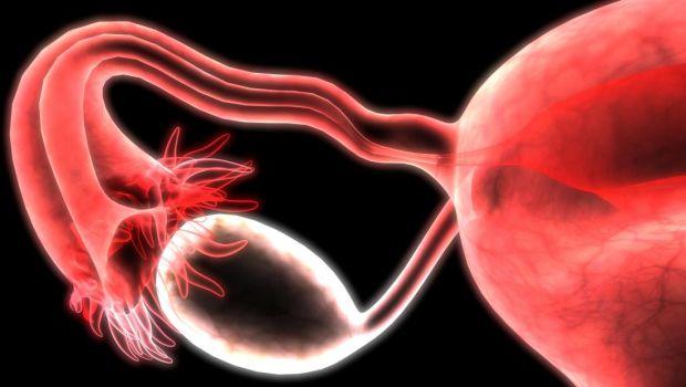 féreghajtó szer sokféle ember számára hpv anogenitális