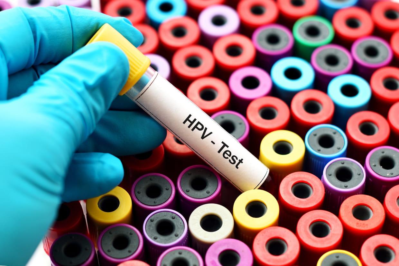 test papilloma