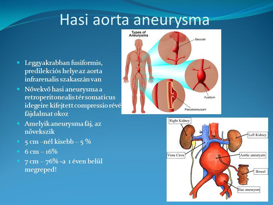 Időzített bomba a testben - Az aorta aneurysma