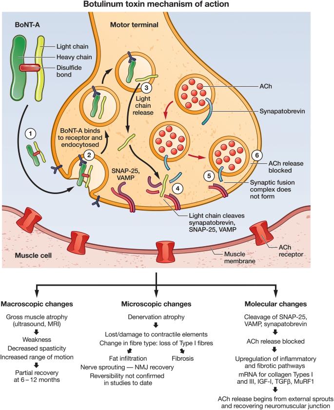 Tájékoztató a Botulin toxinnal végzett arcránctalanításról