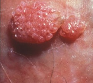 Pedikulose hos børn: en uendelig historie - Giardia mennesker behandling