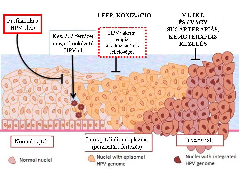 hpv rák típusú