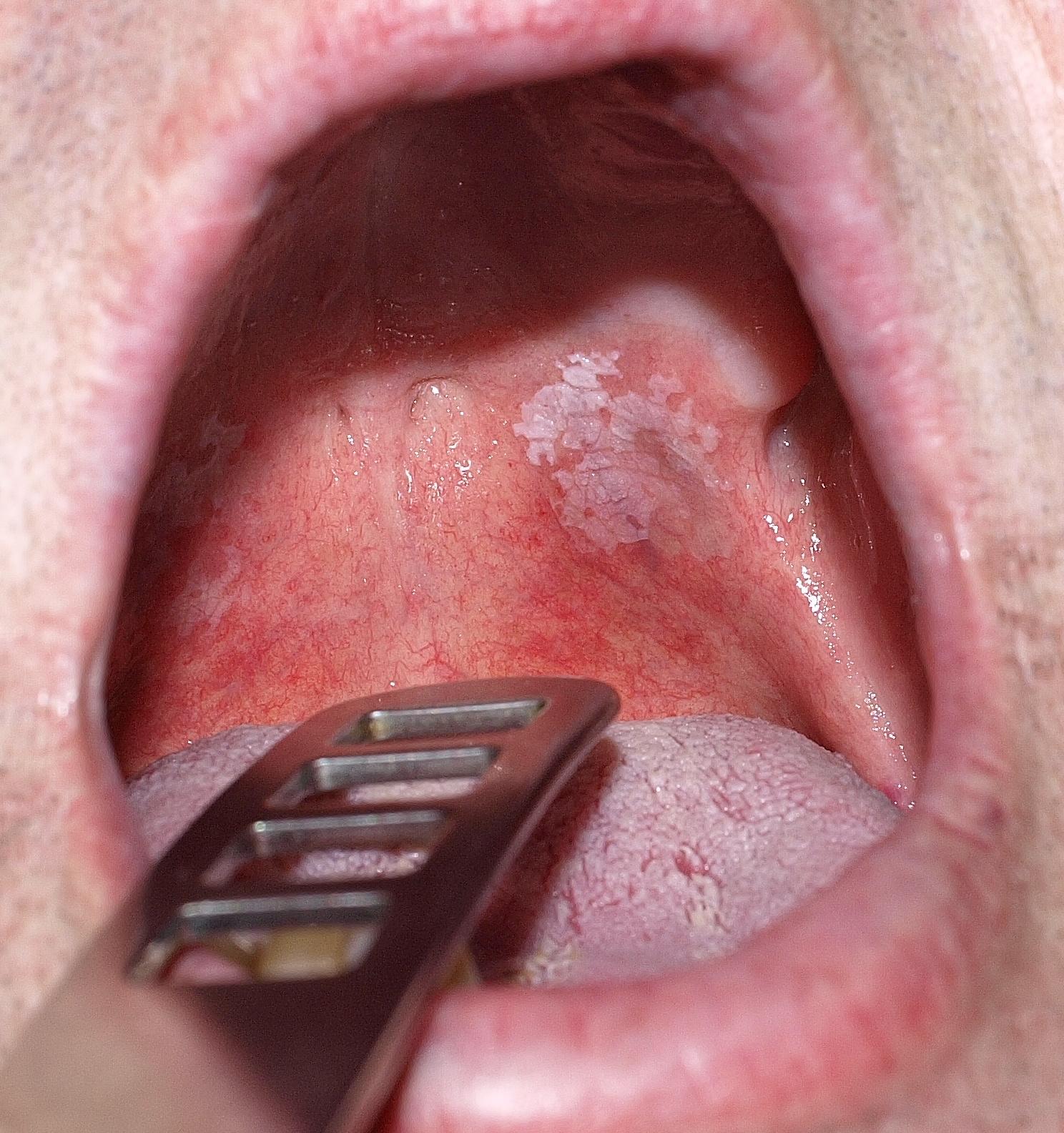 szemölcsök a szájban a nyelven