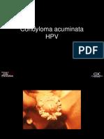condylom vizsgálat penyakit hpv disebabkan oleh