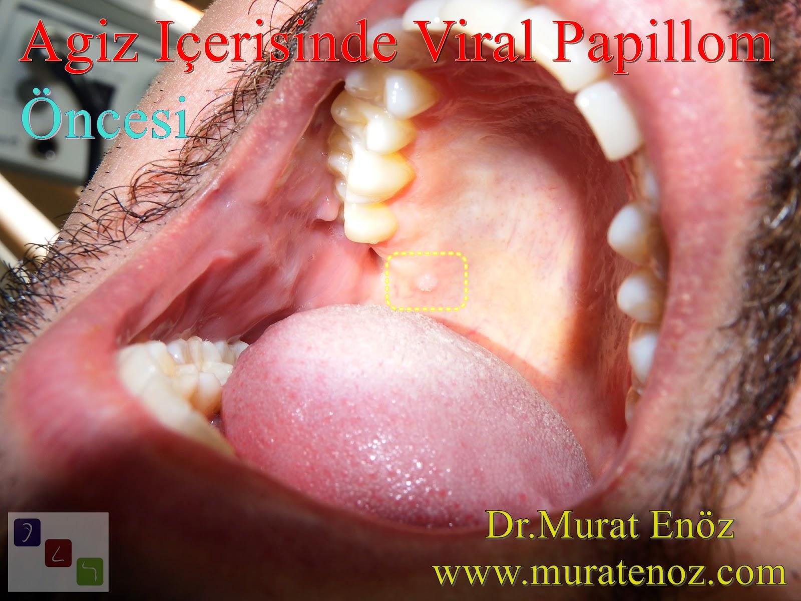 humán papillomavírus belirtileri