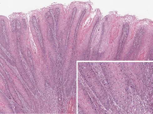 Dr. Diag - Condyloma acuminatum