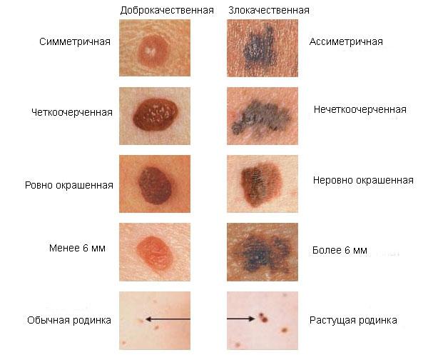 Gyakori kérdések – Bőrgyógyász rendelés | Dr. Thoma Mónika