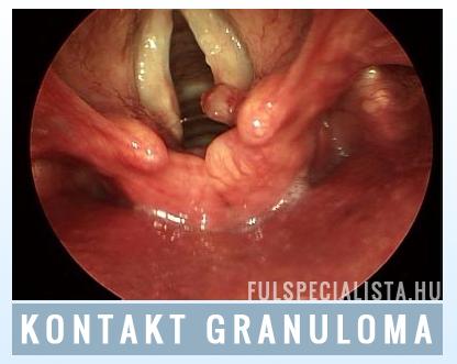 A humán papillomavírus és a szájüregi daganatok | tancsicsmuvelodesihaz.hu