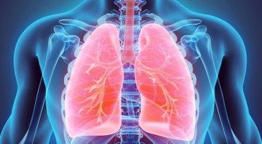 Akinek kétszer kelt fel a nap - Felépülés egy többszörös áttétet adó tüdődaganatból