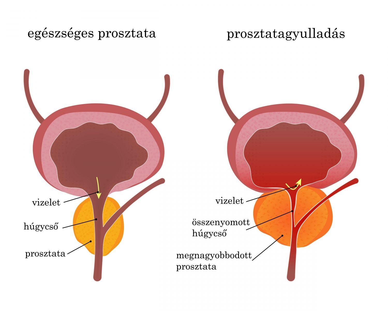 prosztatarák tünetei)
