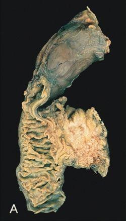 hasnyálmirigyrák gén mutáció)