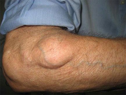 Bőrbetegségek és úszás: Az elkapható fertőzések és tüneteik