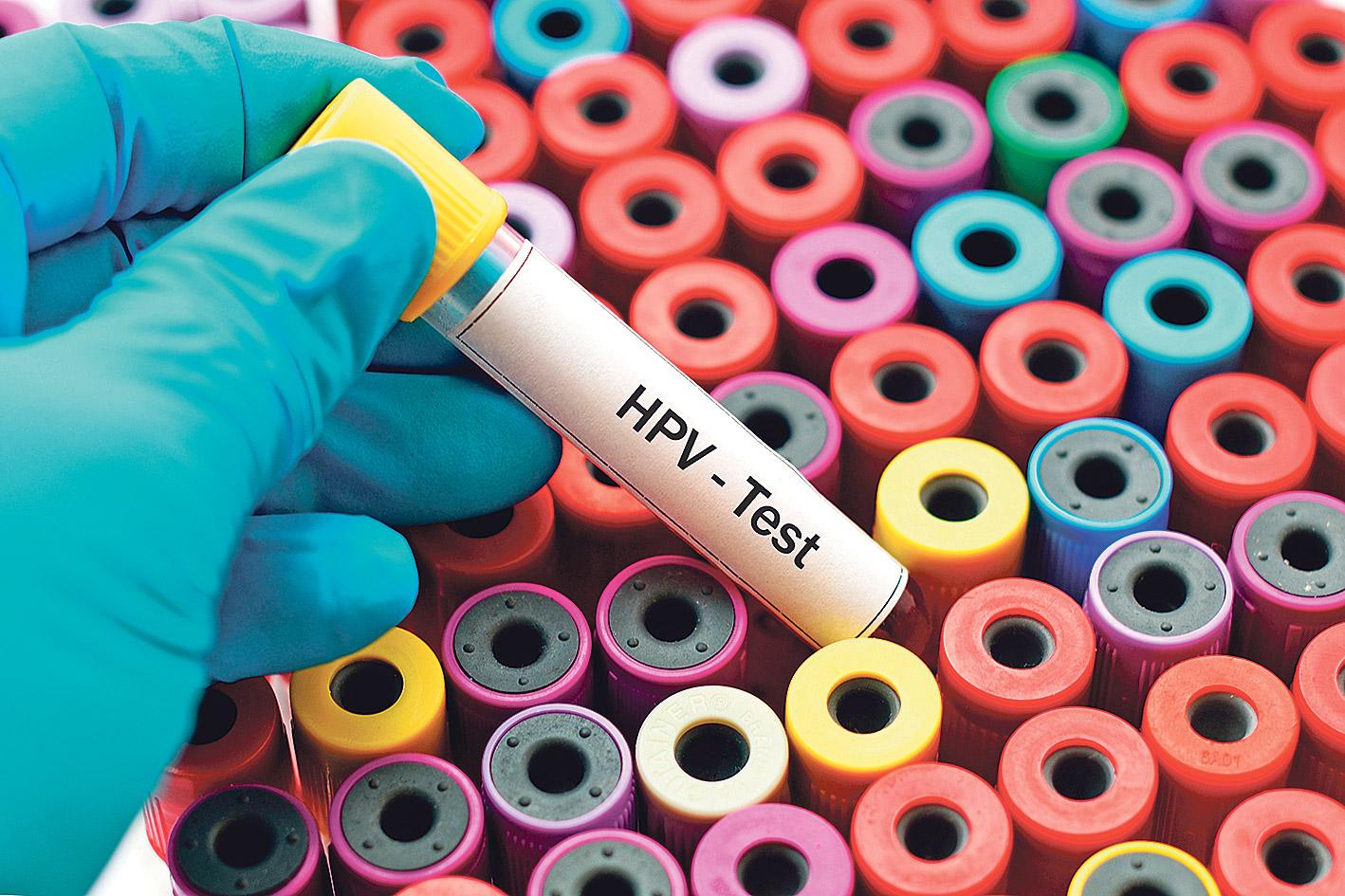 parazita tablettákat tanácsolni