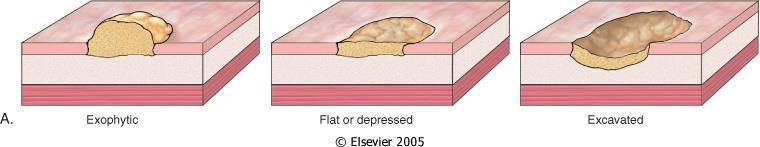 A gyomorrák jelenlétének megállapítása (diagnózis) | tancsicsmuvelodesihaz.hu