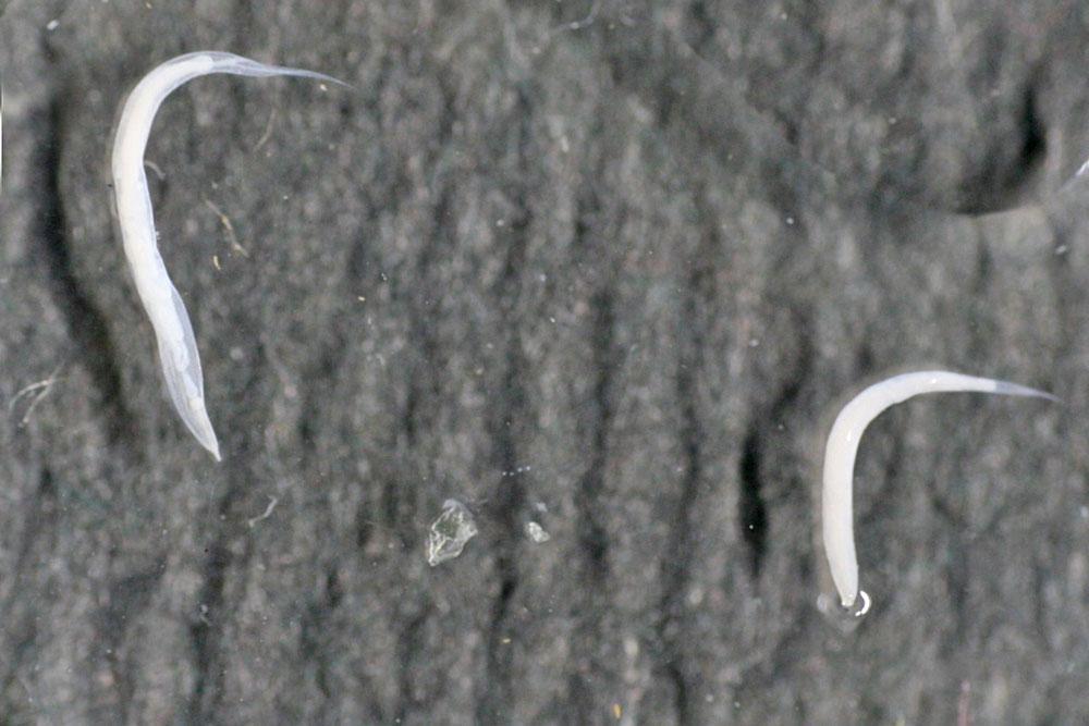 enterobiasis képek