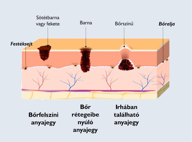 hemangioma papilloma emberi papillomavírus fertőzés szemölcs nélkül
