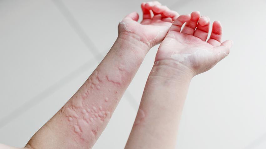 Természetes gyógymódok - A körömférgek legjobb gyógymódja