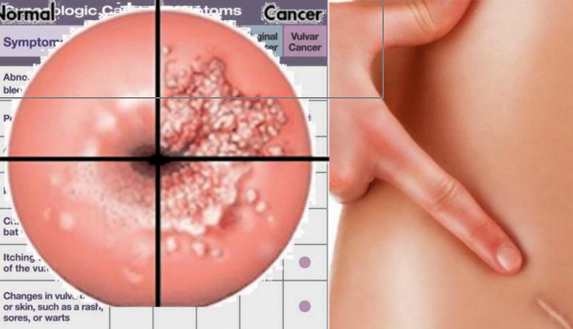 Megnyitja kapuit hazánk első HPV-centruma | tancsicsmuvelodesihaz.hu