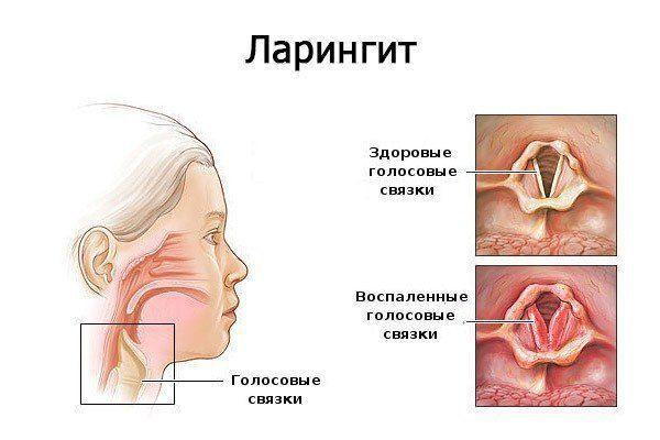 orrszeptum papilloma szájüregi rák a rossz higiénia miatt
