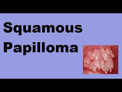 anorectalis papilloma)