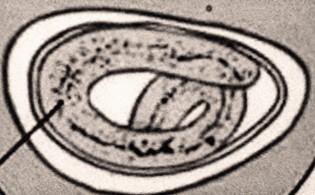 enterobius vermicularis függelék szövettana)