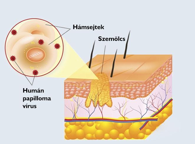 humán papillomavírus és egerek)