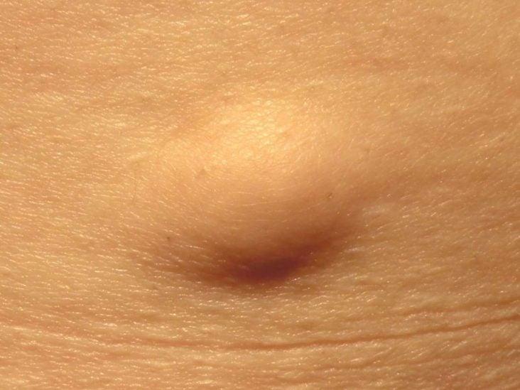 Papilloma eltávolítás Surgitron-nal orr papilloma patológia