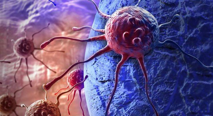 áttétes rák túlélési esélyei