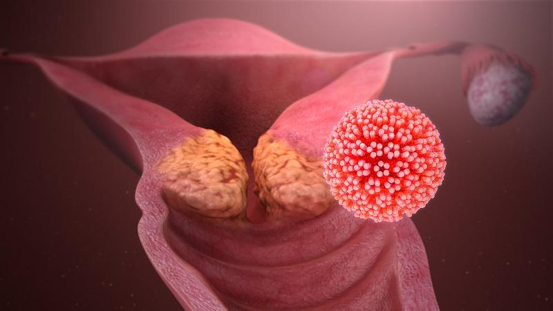 hpv vírus tumor
