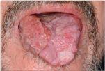 Papilloma torok vírus tünetei)