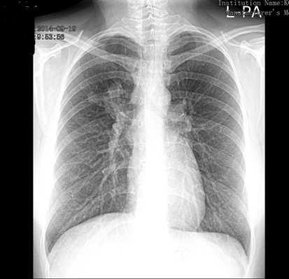 Tüdőrák - Budai Egészségközpont