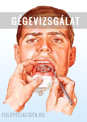 giardia naturista kezelés hpv la vakcina gi