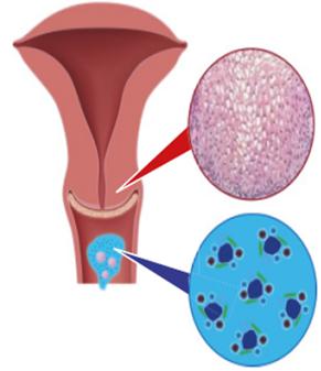 hpv nemi szervek irritációja