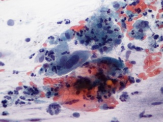 intraductalis anyai papilloma