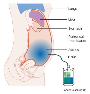 hashártya rák zselés hasa