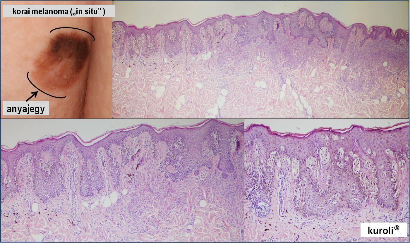 papilloma bőr patológia