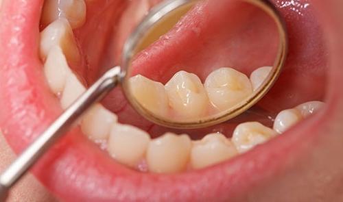 Preventív fogászat   Digitális Tankönyvtár