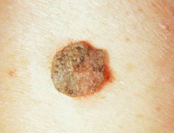 eróziós kezelés és a nemi szemölcsök eltávolítása)