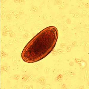 enterobius vermicularis életciklus-animáció