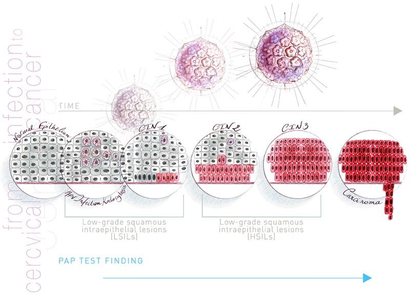 a hpv magas kockázatú, a genotípus reflexével