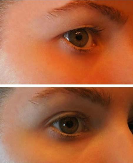 Fűgyökér a mólokból és papillomákból: hogyan kell helyesen alkalmazni - Bőrgyulladás October