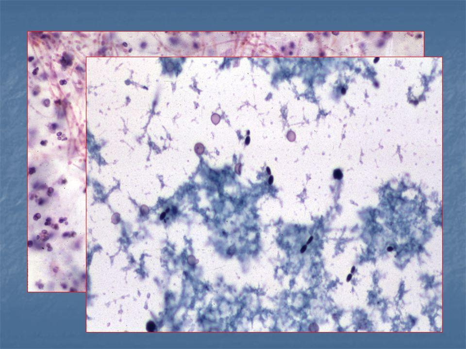 urothelialis papilloma szövettan)