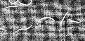 helmint terápia Crohn-betegségben enterobius vermicularis kezelés ivermectin