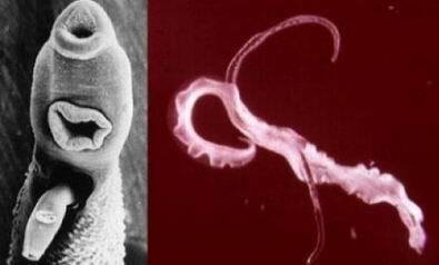 paraziták székrekedés