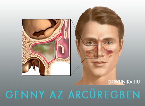maxilláris rák tünetei