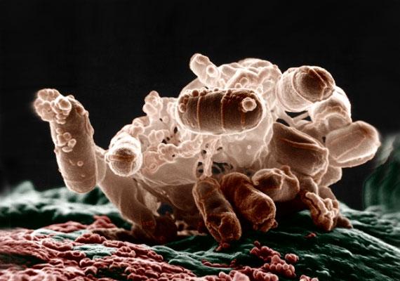 Mi áll a betegséged mögött? – avagy a baktériumok és a vírusok közti különbségek
