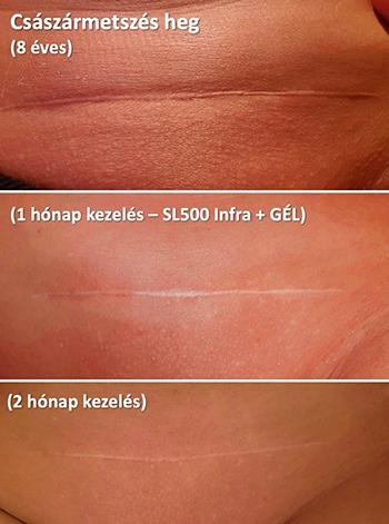 kriodestrukció a genitális szemölcsök eltávolításakor hogyan nyilvánul meg a papilloma