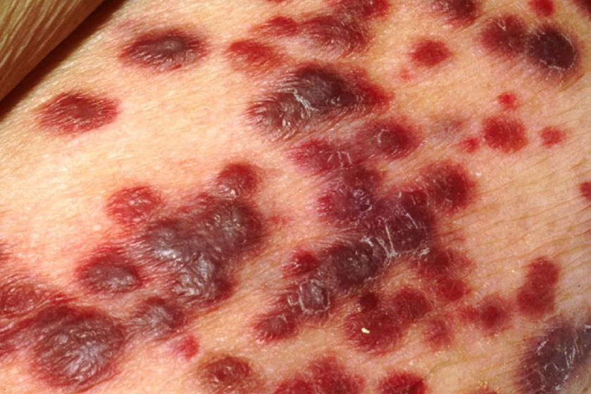 a test méregtelenítése a fogyás miatt hpv papilloma vírus tünetei